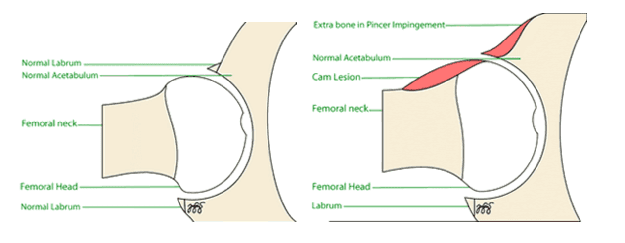 Types of FAI - femoroacetabular impingement