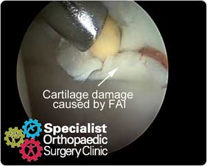 Cartilage damage found during hip arthroscopy