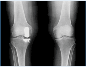 Partial knee replacement using Robotic technology